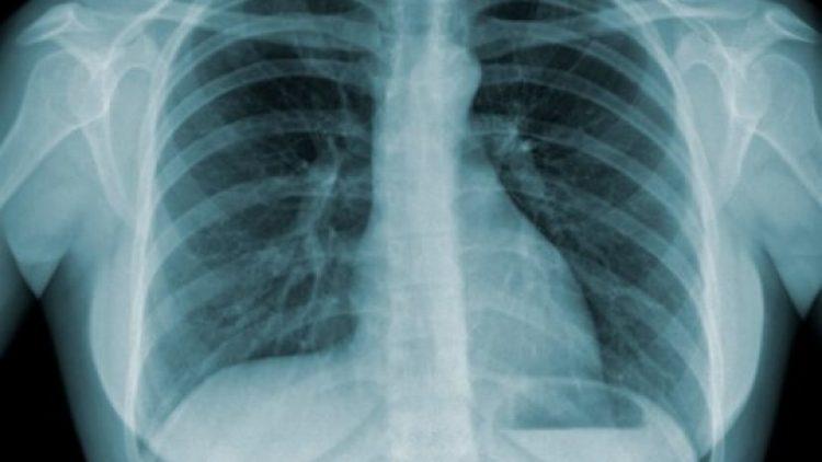 Dia Mundial de Luta contra a Tuberculose é lembrado neste sábado (24/03)